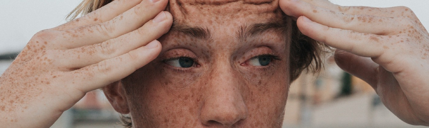 Photo of a man with blond hair and freckles holding the sides of his head looking stressed out.