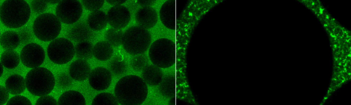 Microscope images that show black beads surrounded by a network of glowing green fibers.