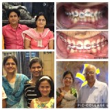 Tooth Truth Roopa Vikesh