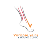 Varicose Veins Wound Clinic