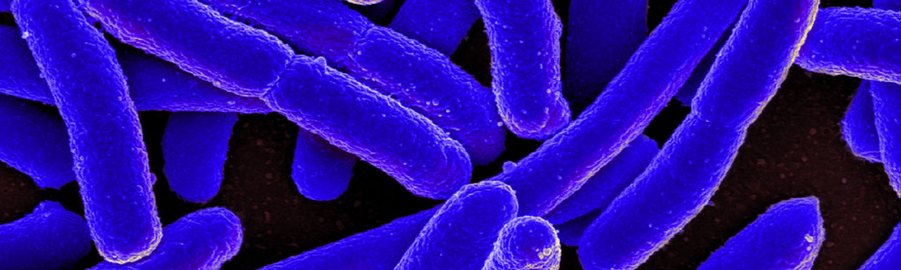 Bacteria are always at war. Understanding their use of weapons may ...
