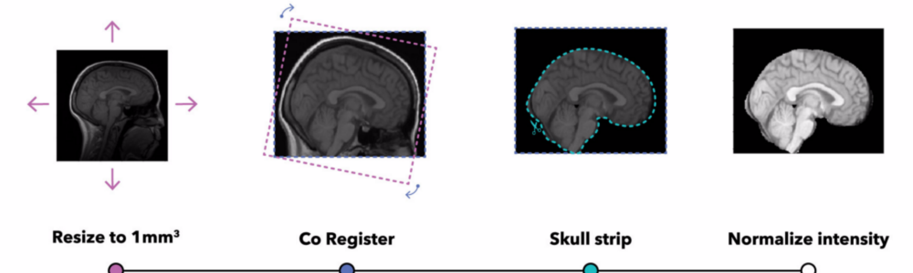 How to estimate the age of your brain with MRI data