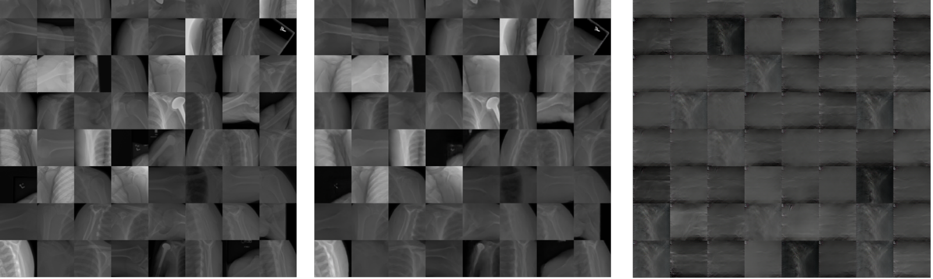 GAN for unsupervised anomaly detection on X-ray images