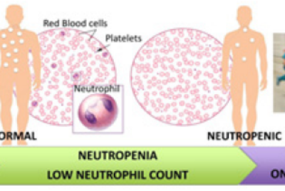 Management of Chemotherapy Induced Neutropenia—an Unmet Clinical Need | Biomedgrid llc