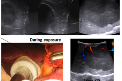 Combination of Liver Resection with Methods of Local Thermal destruction in the Treatment of…