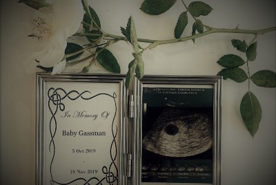 Things They Don't Tell You About Miscarriage