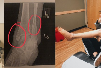 Lessons from a Broken Ankle