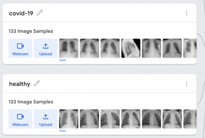 How to detect a lung infection (Pneumonia, COVID-19) with Google Teachable Machine?