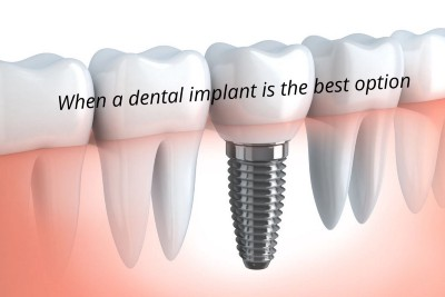 Why A Dental Implant Is The Best Option