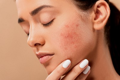 Dermatology Guidelines Released on Actinic Keratosis Management