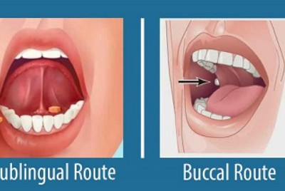 Tips for new nurses: buccal vs sublingual for liquid medications given to a dying patient