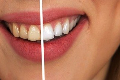 How to Whiten Yellow Teeth Naturally at Home? (With only 3 ingredients)