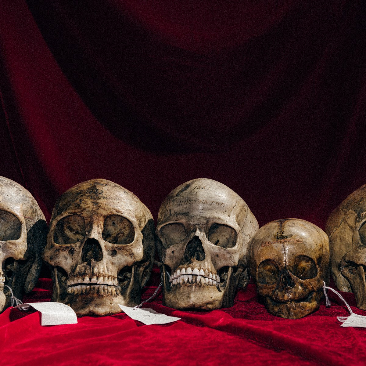 Our Skulls Are Out-Evolving Us