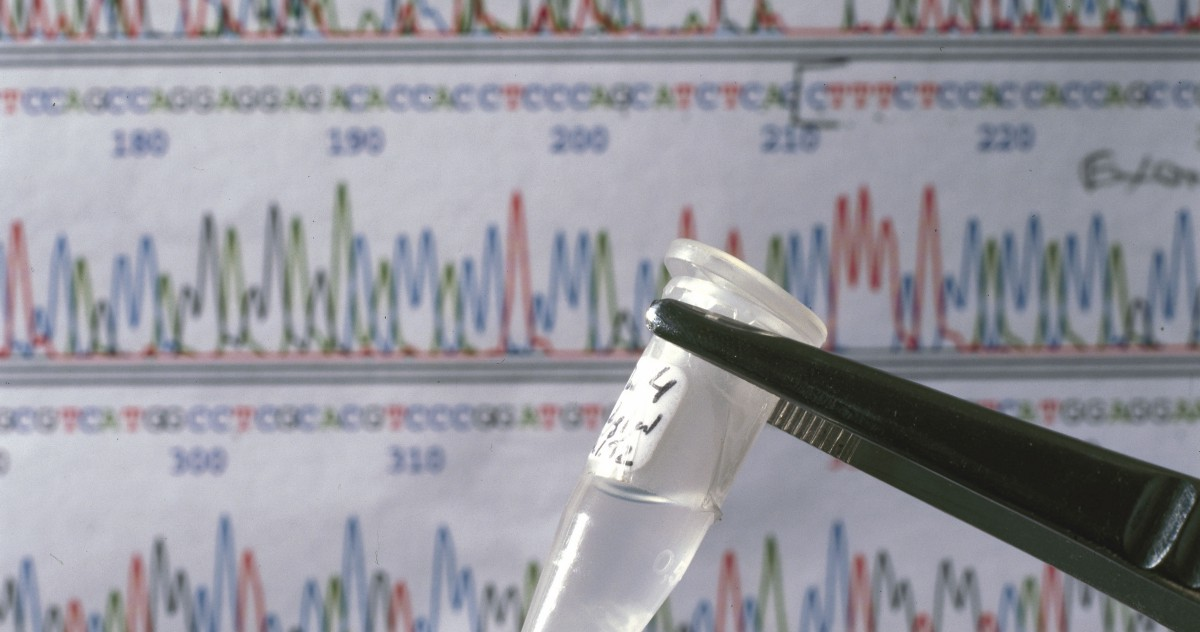 The Price of DNA Sequencing Dropped From $2.7 Billion to $300 in Less Than 20 Years