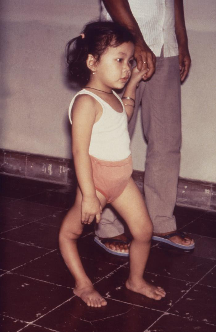 Child with leg deformity from polio (Photo: CDC)