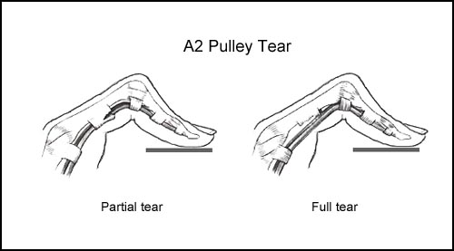 A2 Pulley Injuries in Rock Climbing - Dr  James Lee PT, DPT, FAAOMPT