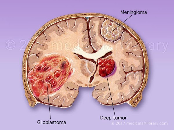 A diagram summerizing 3 different types of brain tumors.