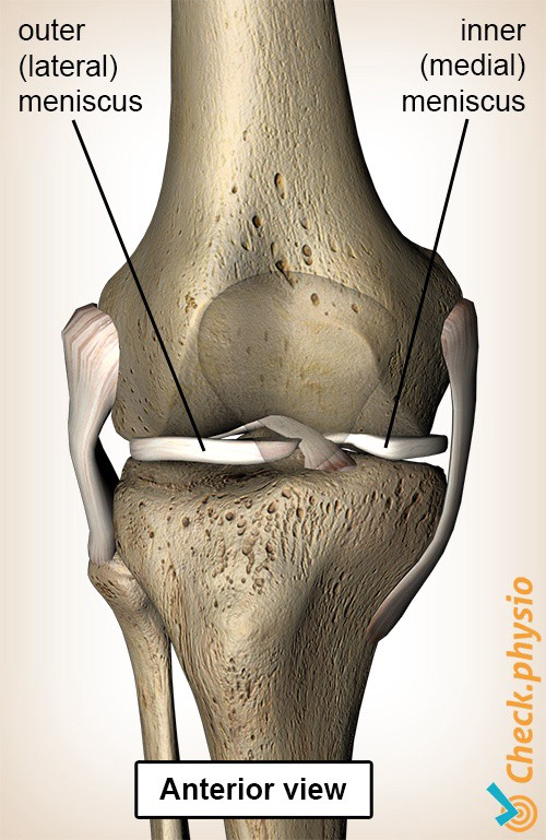 Grinding through injury. Diagram of the knee from the front, illustrating the lateral and medial meniscus.