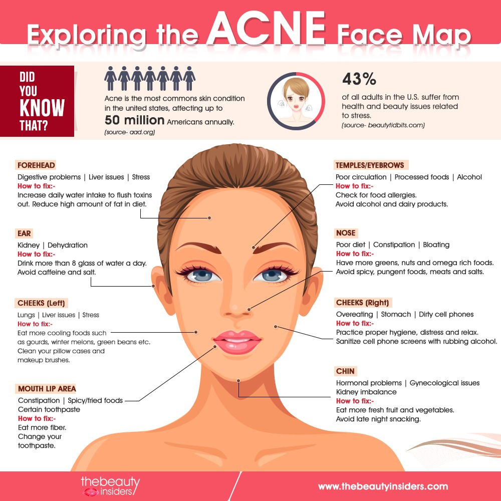 Acne Face Map Know What Does Acne Reveal About Your Health By