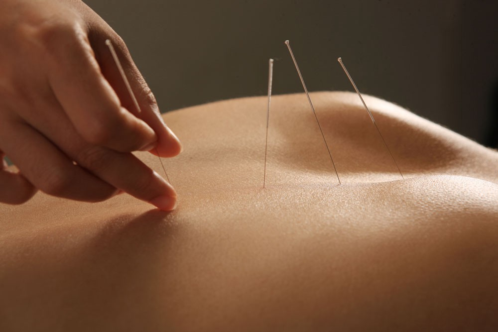 Acupuncture For Back Pain - ACU TCM - Medium