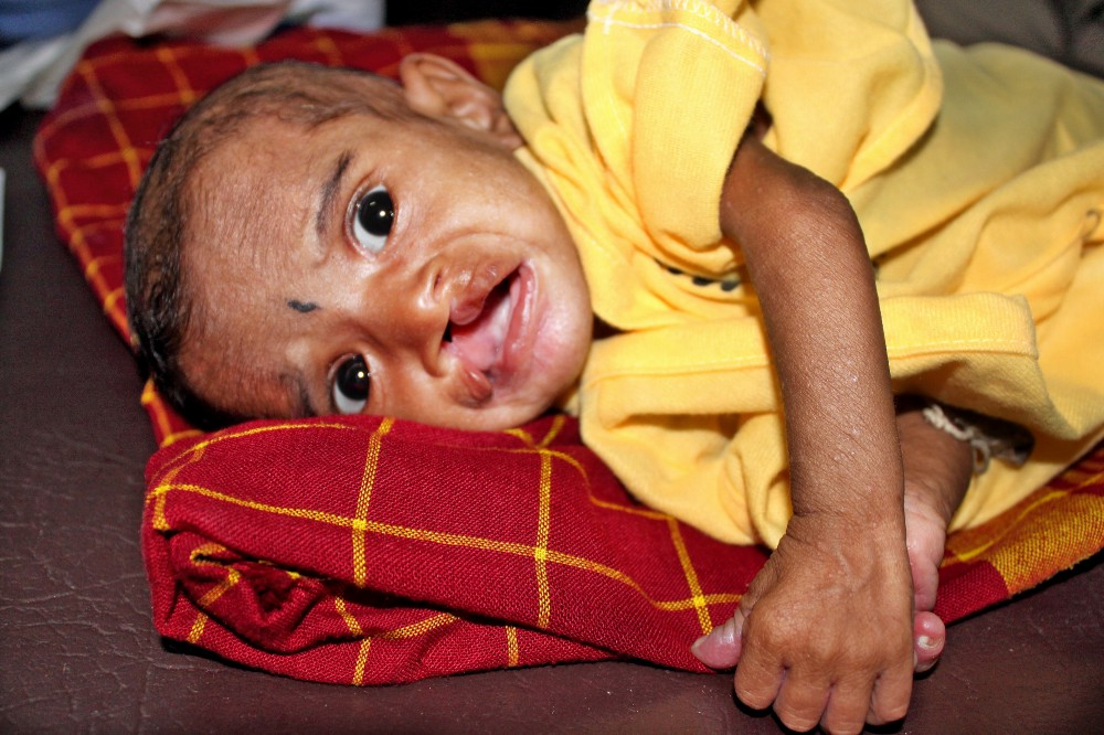8 month old Bismita, an undernourished girl from a mission in India