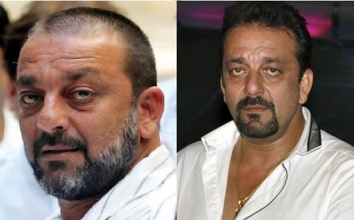 Indian Celebrities Hair Transplant And Hair Replacement By Berkowitsclinic Medium He was looking so handsome without a trace of makeup on his face. indian celebrities hair transplant and