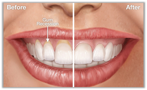 How To Reverse Receding Gums From Getting Worse? - consumerhealth
