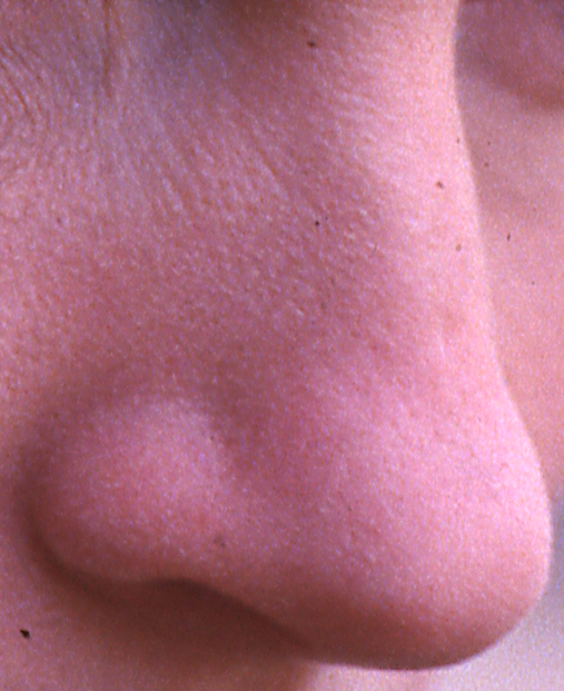 A picture of a nose