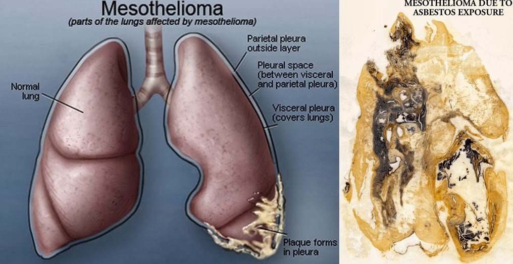 Mesothelioma Cancer An Overview By Abdeslam Ait Hida Medium