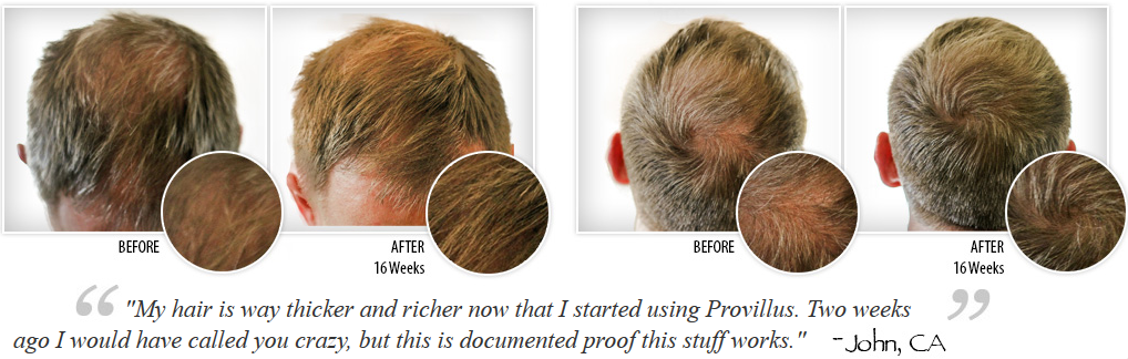 Provillus For Men Review Advanced Hair Technology Is Finally