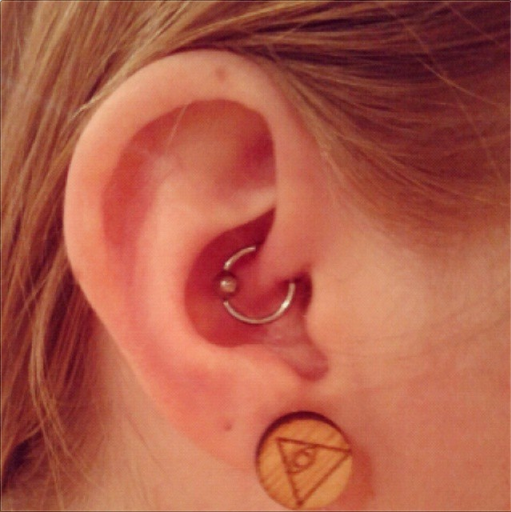 Ear with silver loop Daith piercing for migraine (in the smallest fold of cartilage in the ear, just above the ear canal)