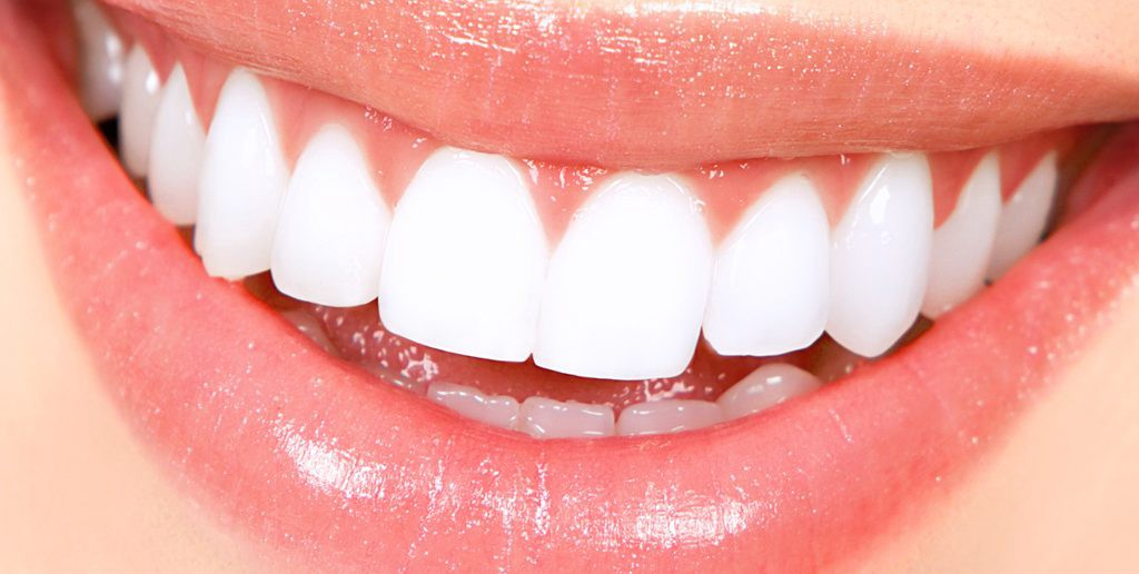 Best Teeth Whitening Home Remedies To Lighten Up Your Life By