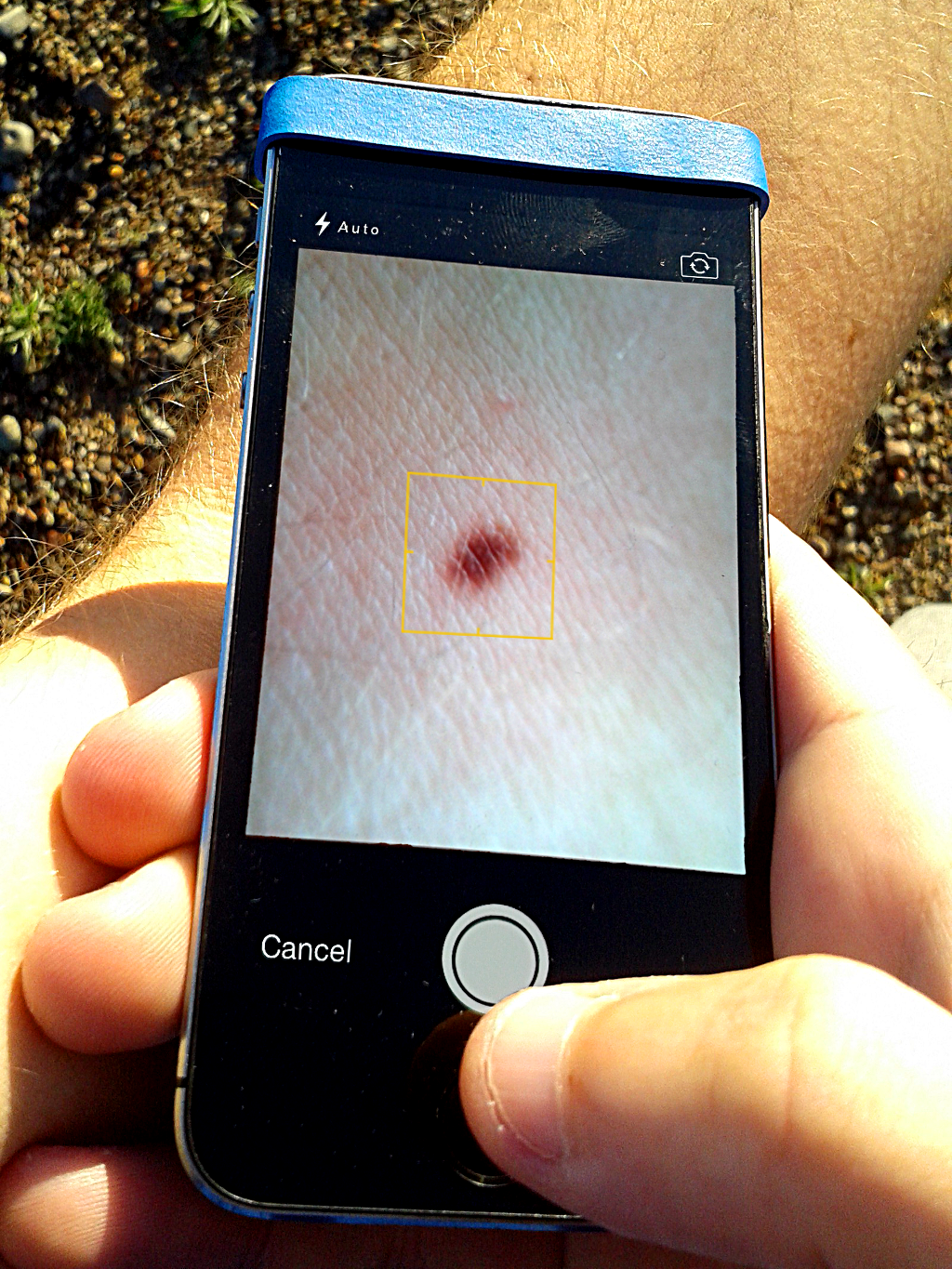 A Novel App To Help People Detect Early Skin Cancer Just Launched Today By Myskinpal Medium