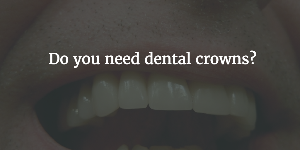 Do you need dental crowns? Find out with our guide - Forever