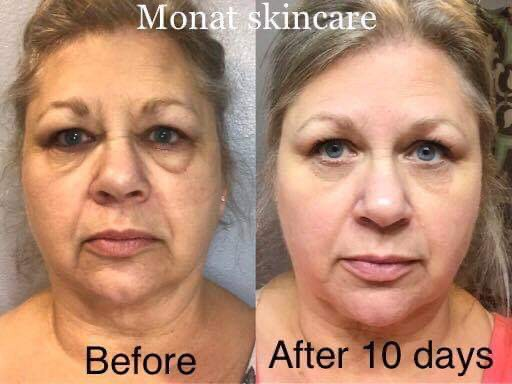 Monat Skincare Products Short Review By Abiola Owoseni Medium