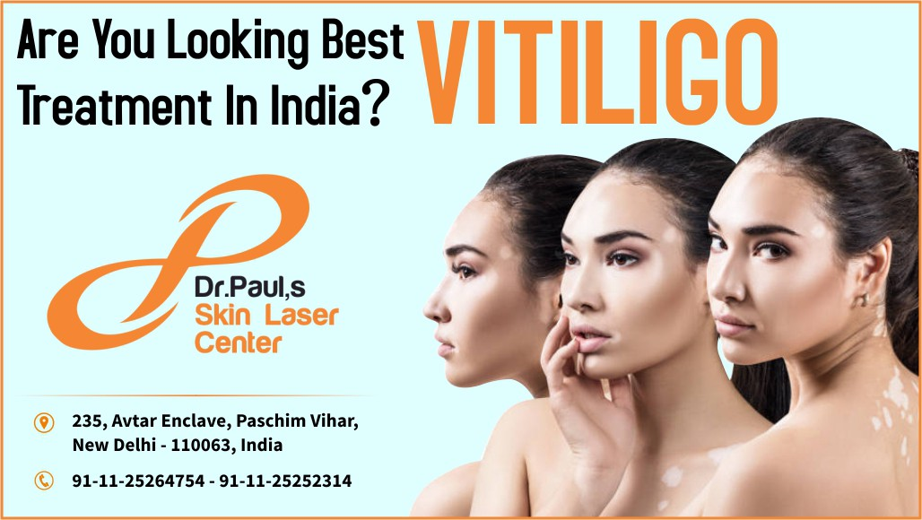 Are You Looking Best Vitiligo Treatment In India By Skin Laser Centre Medium