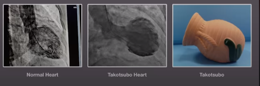 medical pictures comparing a healthy heart to a takotsubo heart and an image of a takotsubo pot or octopus trap