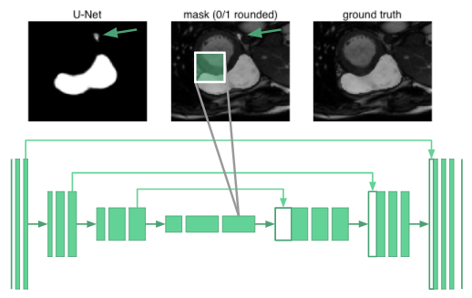 Heart Disease Diagnosis with Deep Learning - Insight Fellows Program