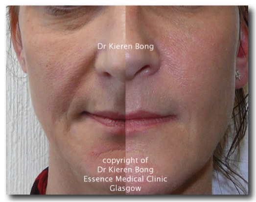 Dermal Fillers — Frequently Asked Questions (FAQ) - essencemedical