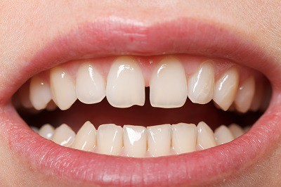 Do Retainers Help To Close Teeth Gaps? - Robert Rudman - Medium
