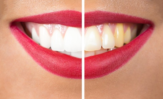 How To Remove Yellow Stains From Teeth?