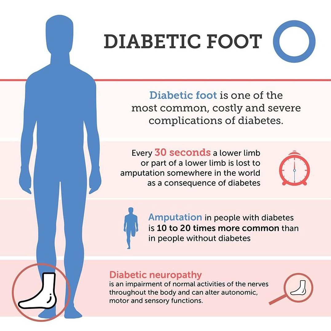Importance Of General Diabetic Foot Care By Dr Brinsley Dr