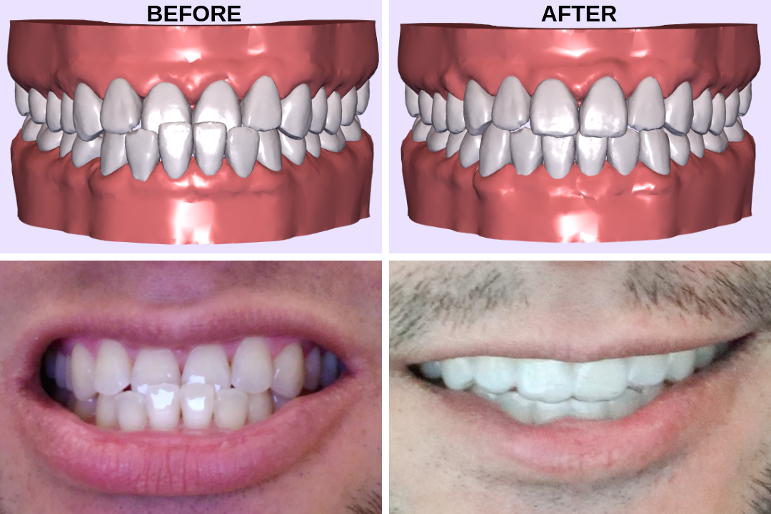 How I Fixed My Underbite Using Smile Direct Club Invisible