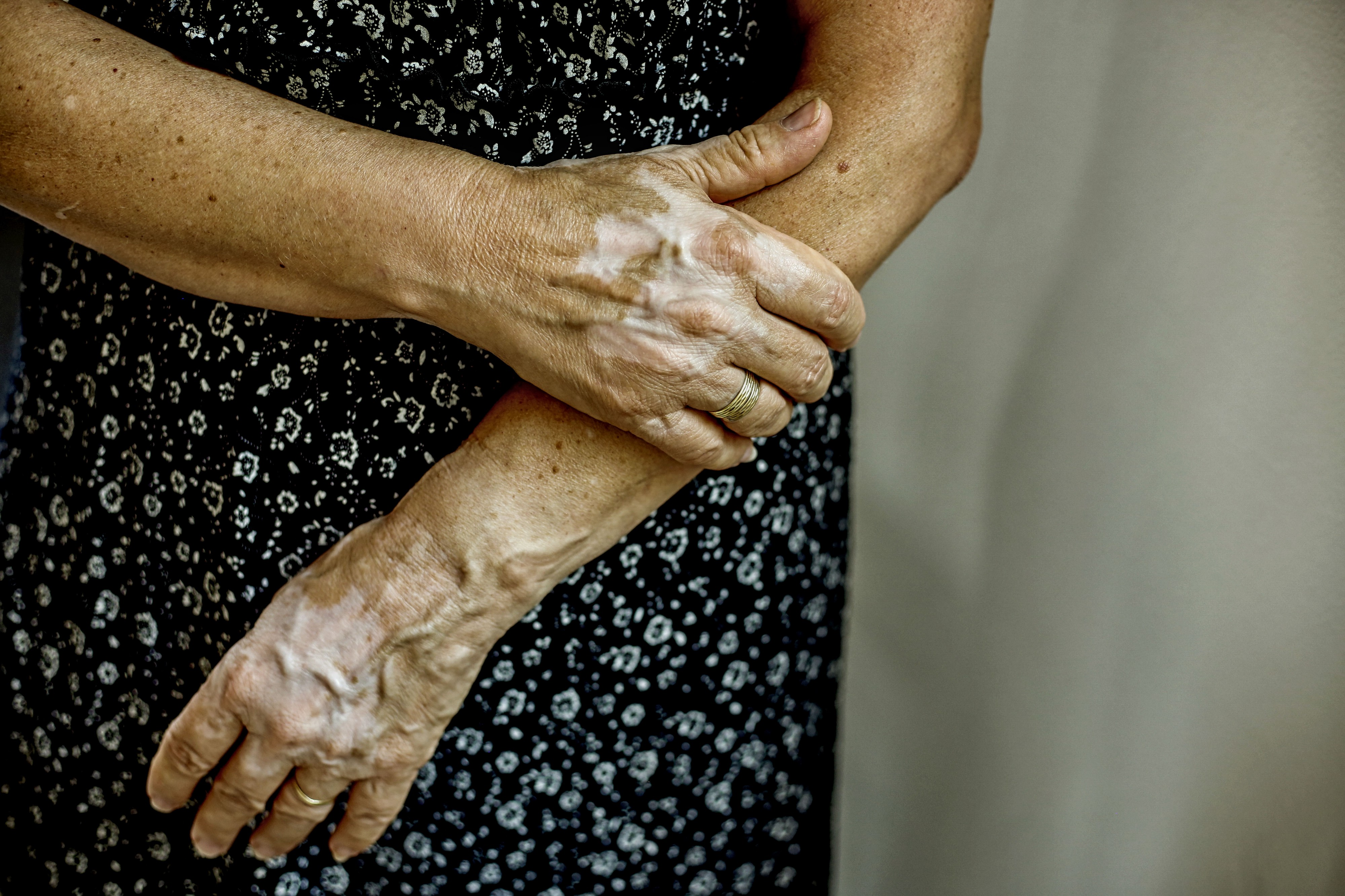 A close up of a woman's arms and hands with vitiligo.