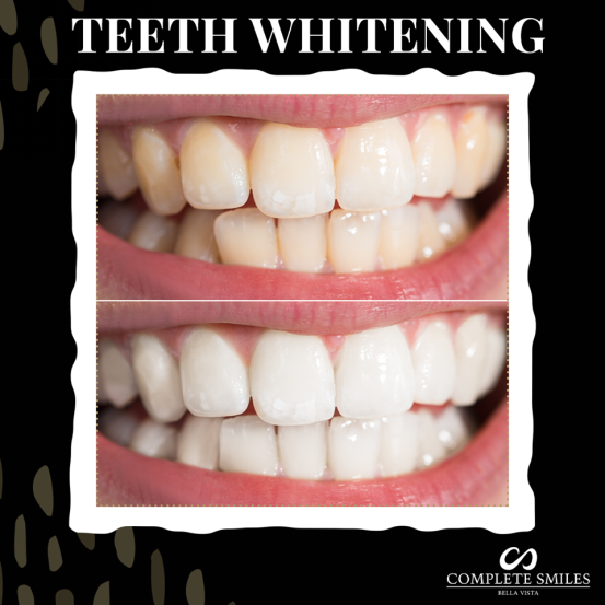 7 Professional Teeth Whitening Myths That You Should Avoid At All
