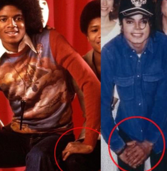 Michael Jackson And Lupus Michael Suffered From Discoid Lupus A By Mean Machine Medium
