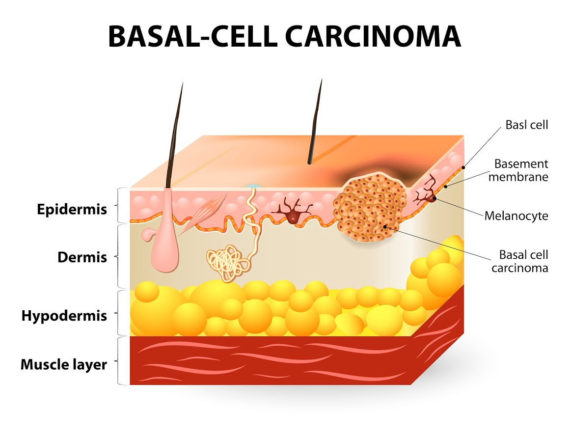 How Serious Is Basal Cell Skin Cancer By Raskin Martin Medium