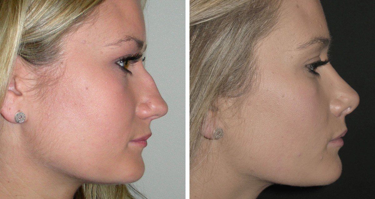 What Is The Cost Of A Complete Rhinoplasty In India By Medmonks Medium