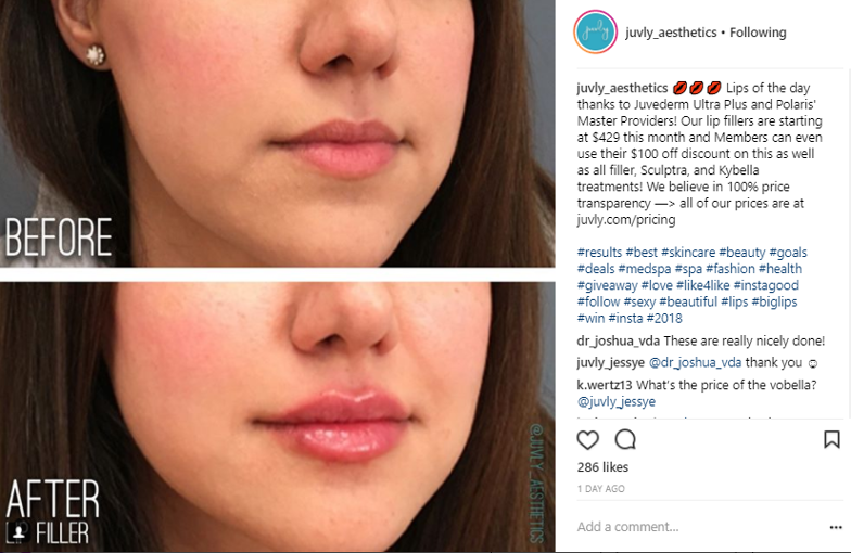 Lumps After Filler — What now? - Juvly Aesthetics - Medium