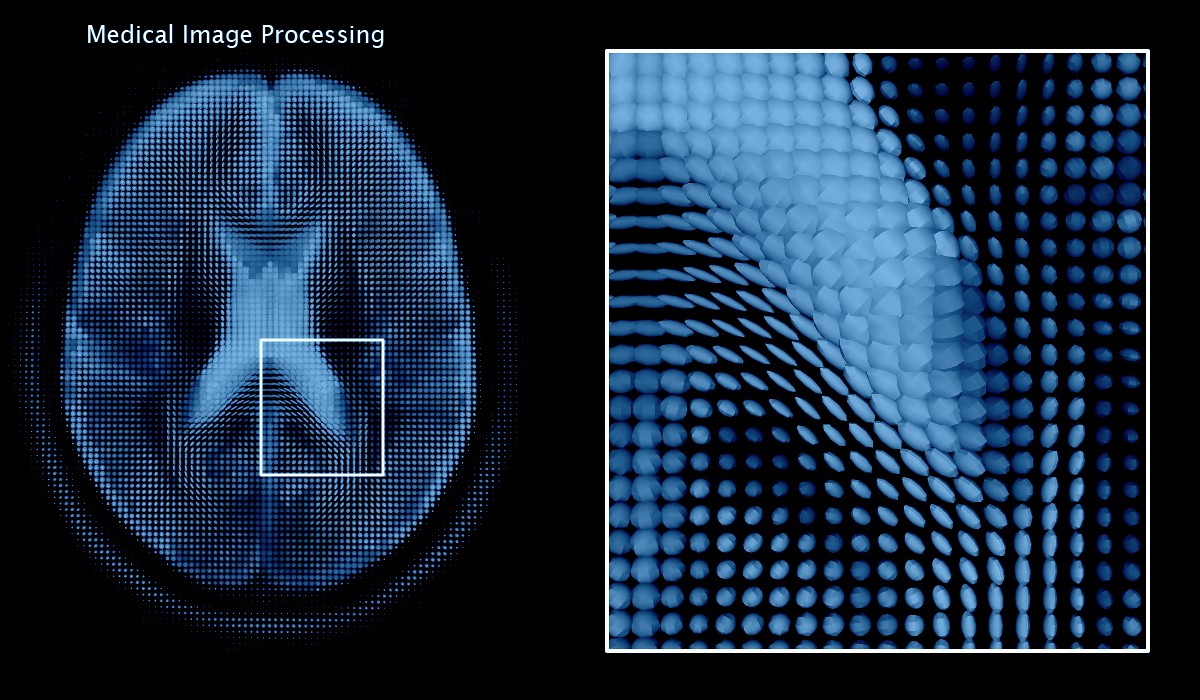 Medical Image Analysis with Deep Learning — I - Taposh Dutta